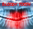 Bloody Tooth