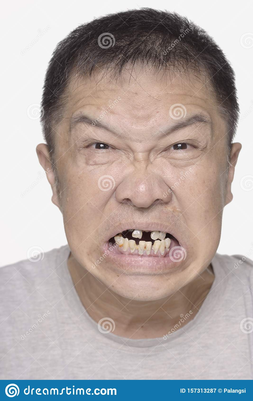 Asian_teeth.jpg